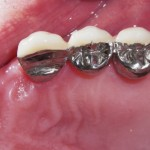 bridged teeth